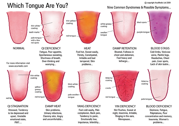 Tongue Diagnosis - Qi Blog
